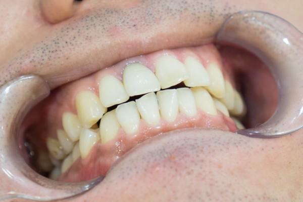 取り 痛い 歯石