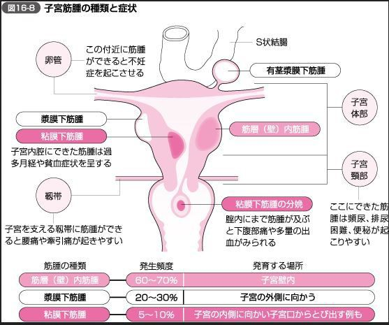 筋腫 子宮 林産婦人科 HAYASHI