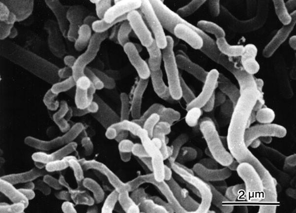 「コレラ菌 画像」の画像検索結果