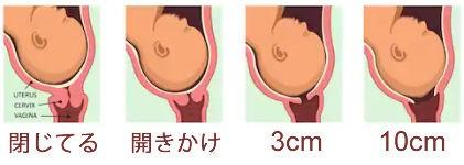 子宮 口 が 開く と は