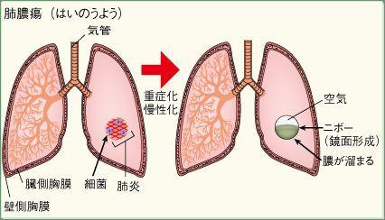 肺化膿症 : こどもの病気・おとなの病気