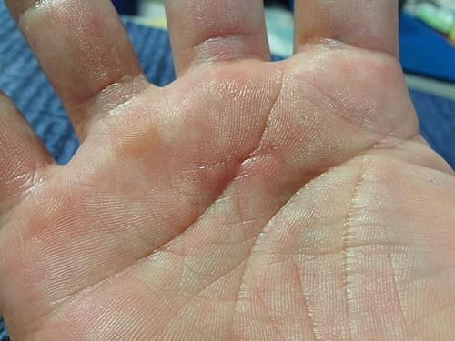 バネ 指 手術 後