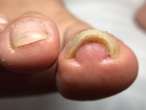 爪 水虫 完治