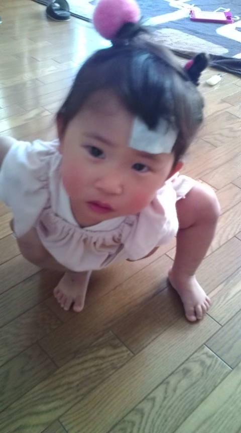 おでこ た 赤ちゃん ぶつけ 赤ちゃんが頭をぶつけたときの対処法は?新生児でも病院へ行くべき?