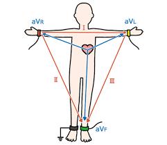 12誘導心電図の基本を覚えよう! : 心電図の部屋