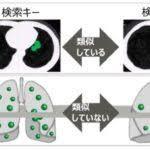 富士通研究所 肺炎のCT画像をAIが診断支援、症例データを数秒で医師に提示